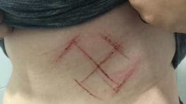 Laudo reafirma que jovem gaúcha tentou mutilar o próprio corpo