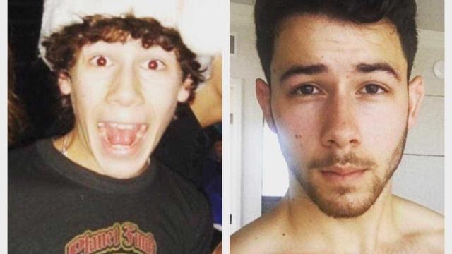 Nick Jonas compartilha foto antiga e fala sobre luta contra diabetes