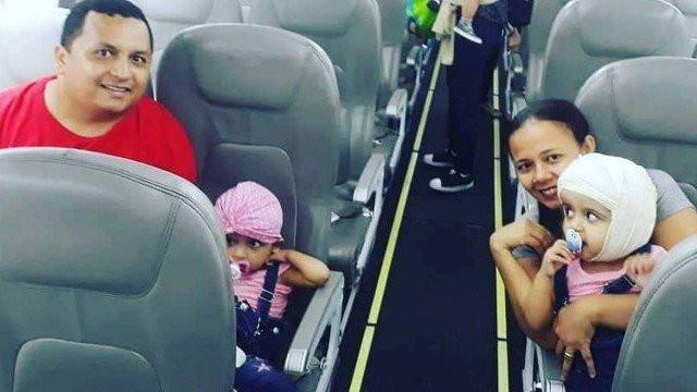 Gêmeas que nasceram unidas pela cabeça voltam para casa, no Ceará