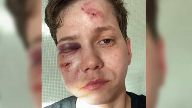 Defensora de Bolsonaro, youtuber lésbica sofre ataque homofóbico