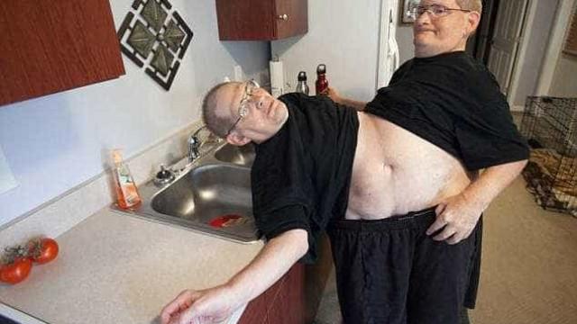 Gêmeos siameses mais velhos do mundo morrem aos 68 anos