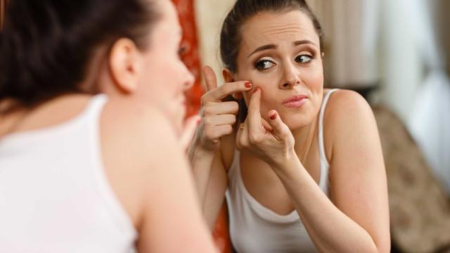 Alerta: Acne pode ser confundida com outras doenças de pele