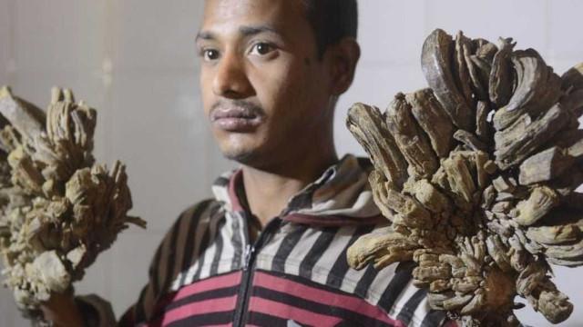 Abul, o 'homem-árvore' de Bangladesh, vai ser operado após 10 anos