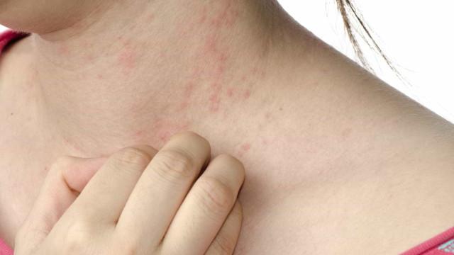 Casos de herpes zoster aumentam 35%
