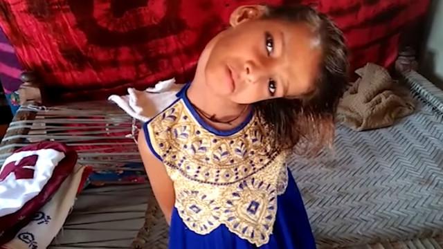 Criança com condição rara move a cabeça a 180 graus