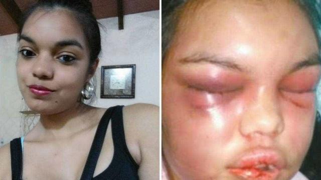 Marido espancava mulher por cada curtida que ela recebia no Facebook
