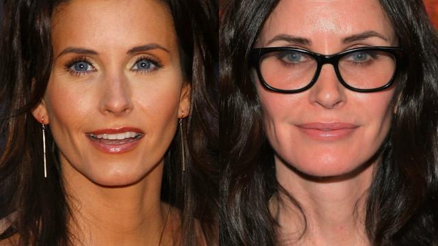 Antes e depois: veja as famosas que exageraram nas plásticas