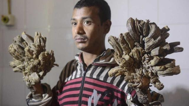 'Homem árvore' abandona tratamento e segue com rara síndrome