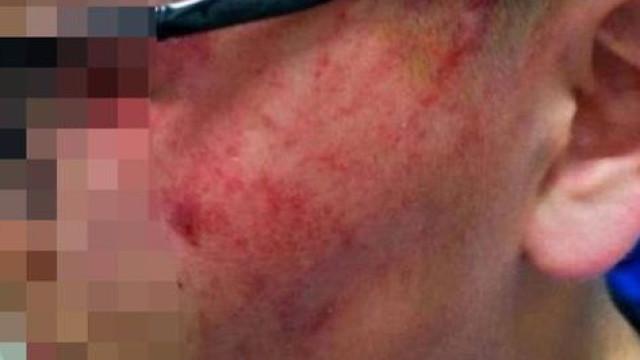 Professora deixa aluno com ferimentos graves após lhe dar bofetadas