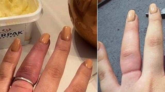 Com as mãos inchadas, grávida precisa cortar anel de R$ 2,4 milhões