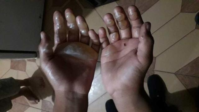 Mãe é suspeita de queimar mãos de filho de 9 anos com ferro de passar