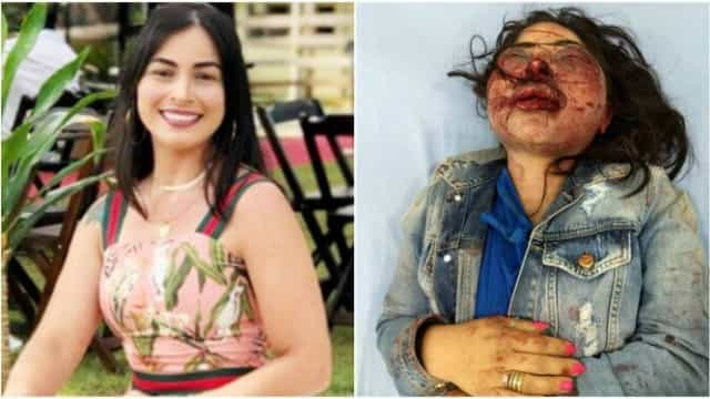 Mulher agredida pelo namorado e deixada nua em estrada já se alimenta