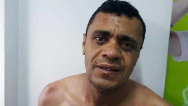 Inquérito desconstrói fake news de facada em Bolsonaro, diz delegado
