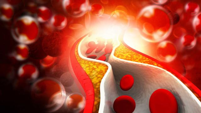 Dia nacional do combate ao colesterol chama atenção para o problema