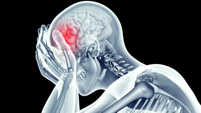 Os quatro principais fatores que disparam as dores de cabeça