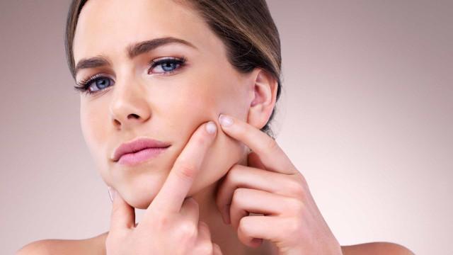Será que a vitamina C pode ajudar a tratar a acne?