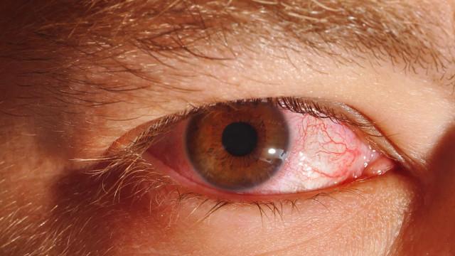 Primavera contribui para aumento de casos de conjuntivite alérgica