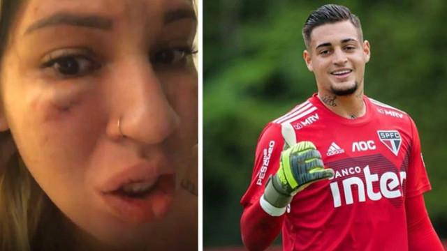 Mulher do goleiro Jean, do São Paulo, acusa o marido de agressão