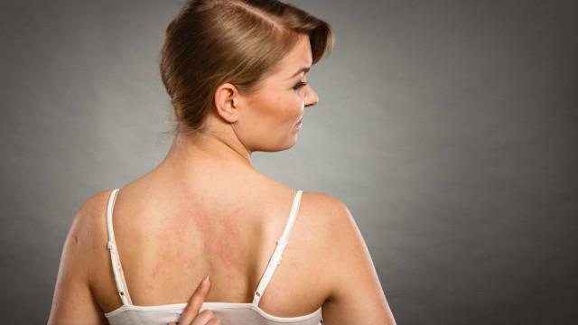 Médicos alertam: Urticária e diarreia também são sintomas da Covid-19