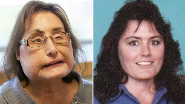 Primeira mulher que fez transplante facial nos EUA morre aos 57 anos