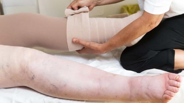 Pacientes relatam desafios em conviver com o linfedema primário