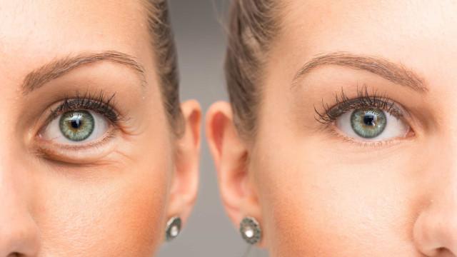 Quatro super dicas para disfarçar as olheiras no dia-a-dia