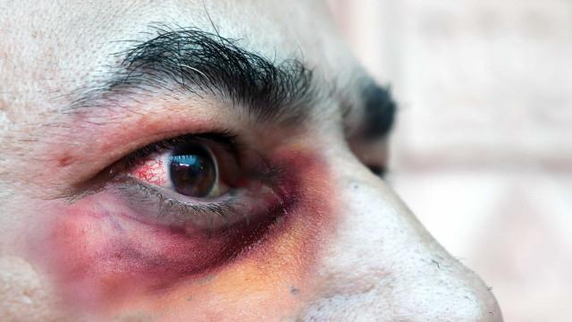Mucormicose: Infecção rara mutila e mata doentes com Covid-19 na Índia