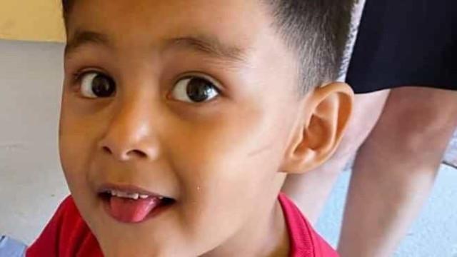 Criança de 3 anos morre após anestesia durante ida ao dentista