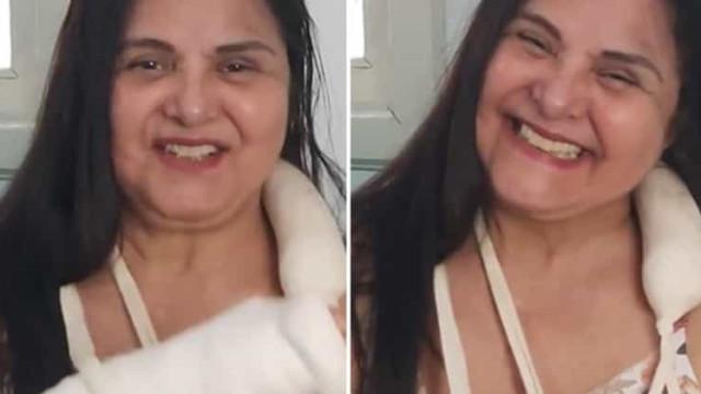 Atriz Elizangela sofre acidente em casa e fratura antebraços