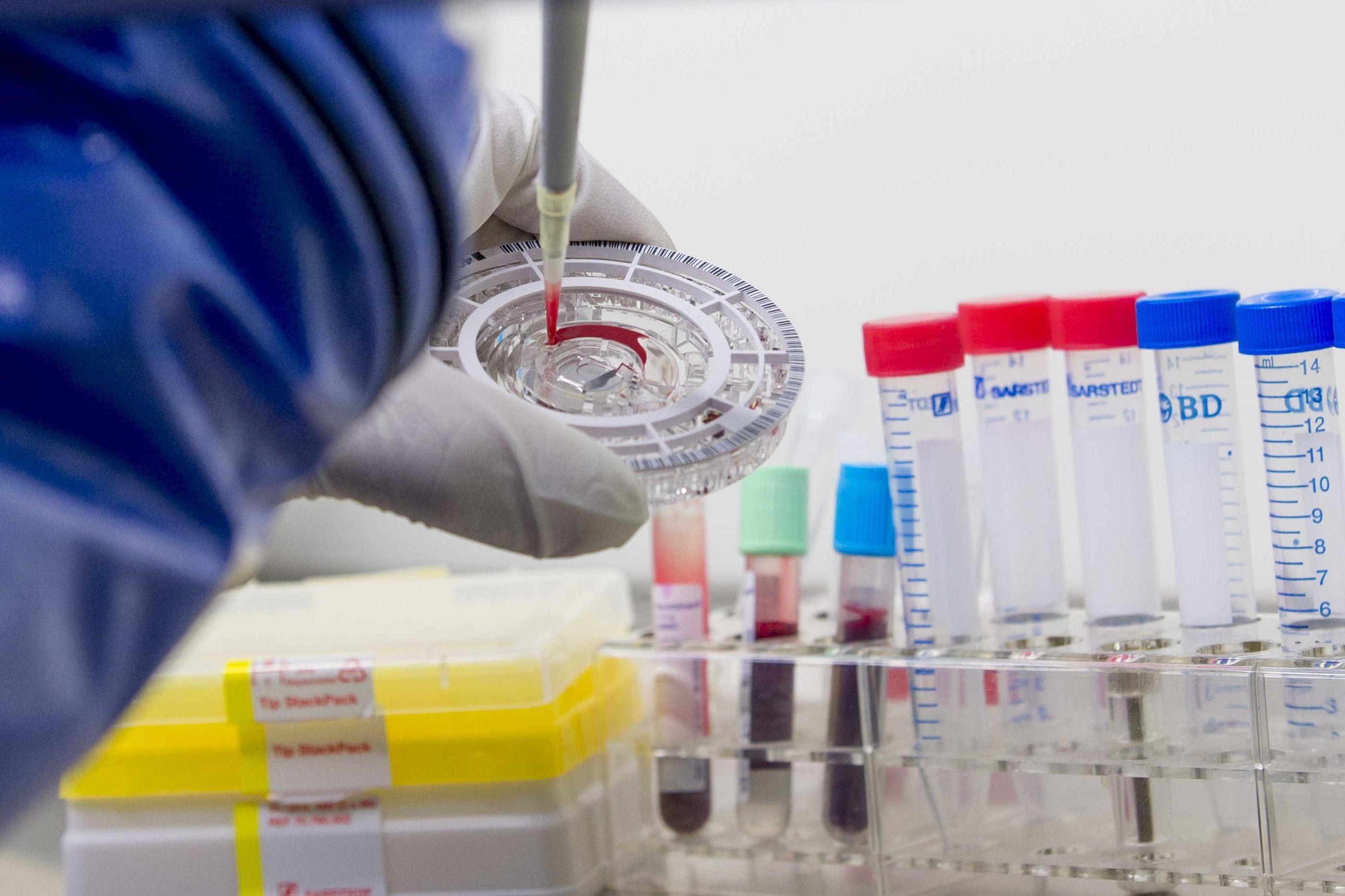 Ebola: 271 mortos e 458 casos na República Democrática do Congo