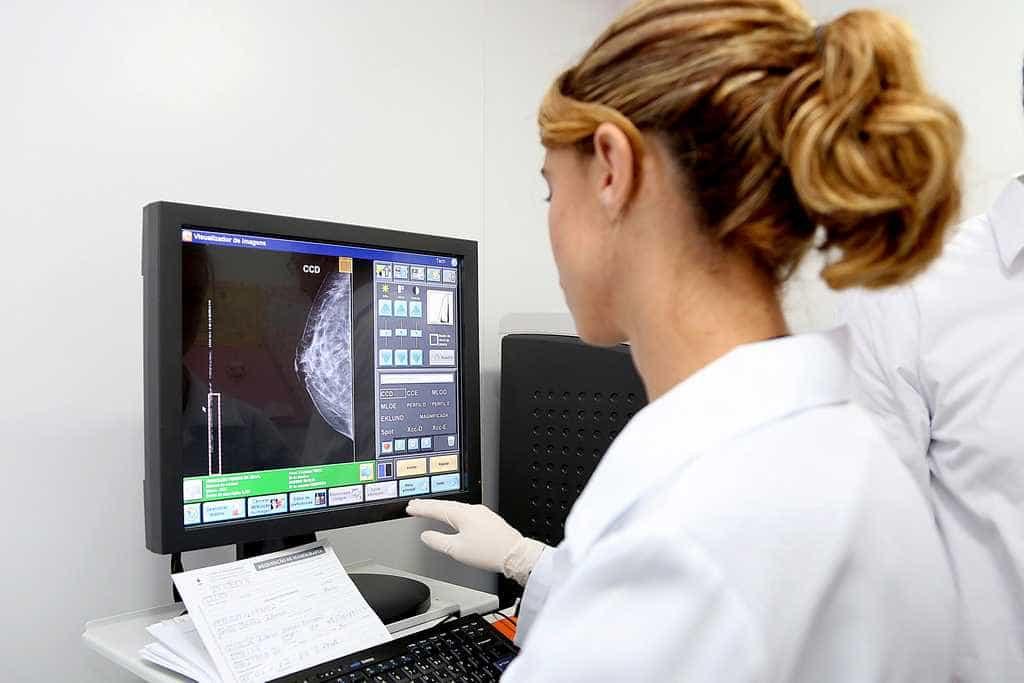 Câncer de mama tem primeira imunoterapia aprovada no Brasil