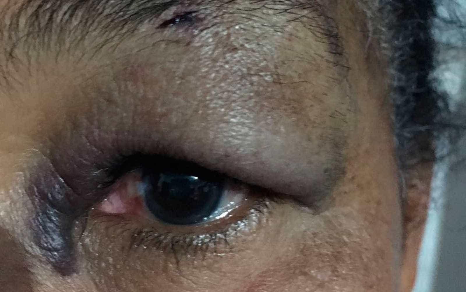 Bahia: idosa leva soco após discutir com vendedor por R$ 40