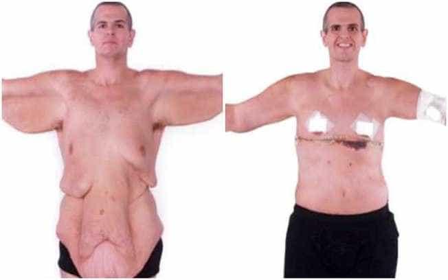 Impressionante: homem perde 200 kg e faz cirurgia para retirada de pele