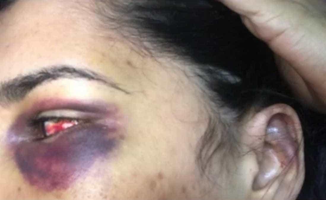 Filho de prefeito que espancou ex na BA assumiu agressões