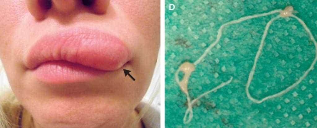 Parasita invade corpo de mulher e o resultado é impressionante