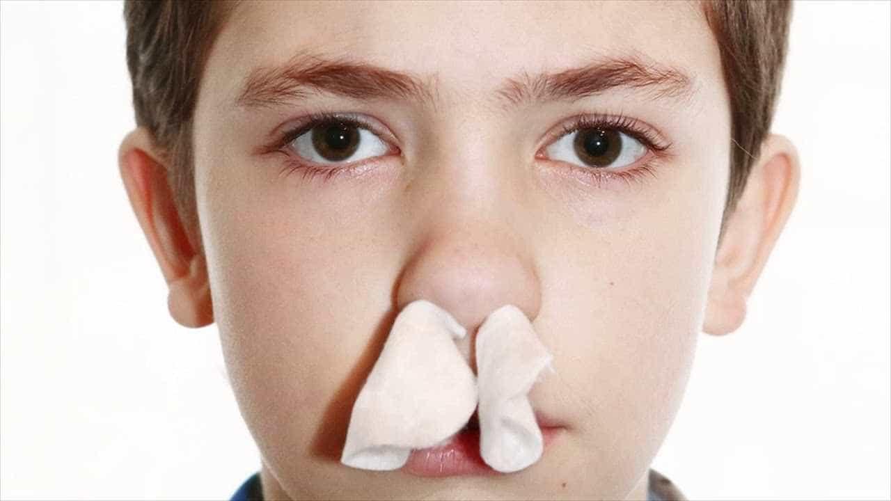 Saiba o que fazer para evitar o sangramento nasal num clima seco