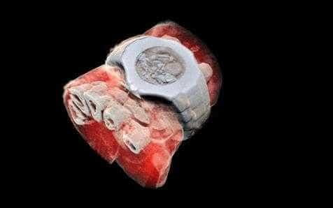 Cientistas testam primeira radiografia 3D e a cores