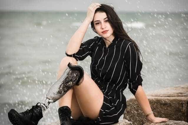 Modelo desfilará no Miss Itália com prótese na perna