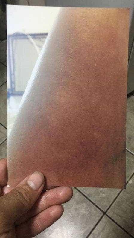 'Quase perdi a perna', diz ex-paciente de Doutor Bumbum