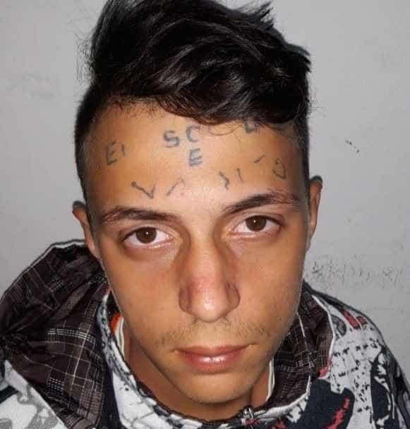 Tatuagem 'Sou ladrão e vacilão' ainda não foi removida por inteiro
