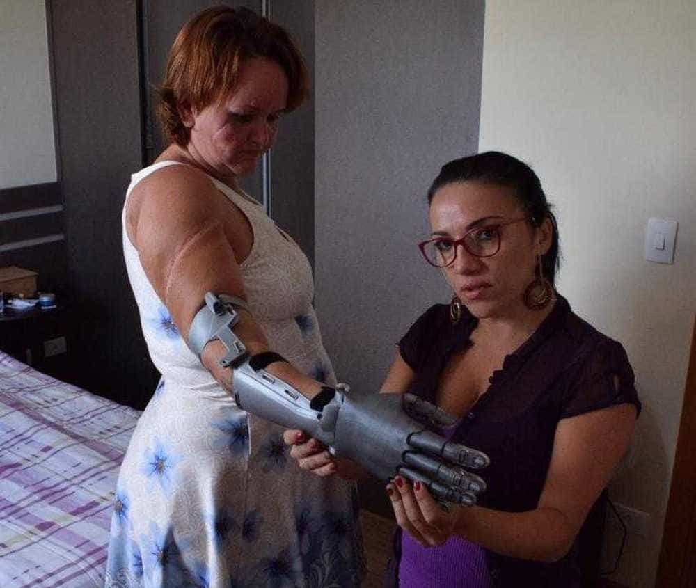 Mulher que teve as mãos decepadas faz campanha para comprar prótese