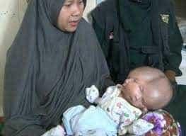 Bebê nasce com dois rostos e dois cérebros na Indonésia; vídeo