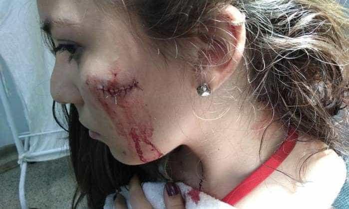Durante assalto, jovem é esfaqueada em estação do BRT