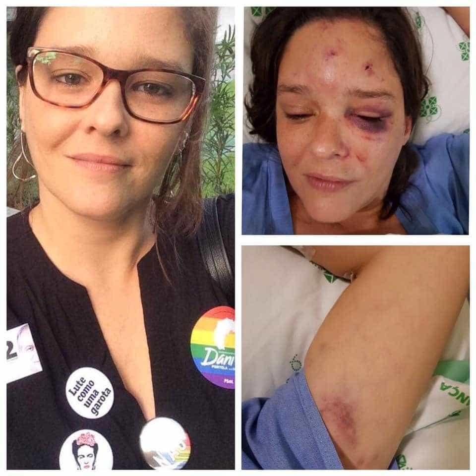 Servidora pública é espancada em PE após criticar Bolsonaro