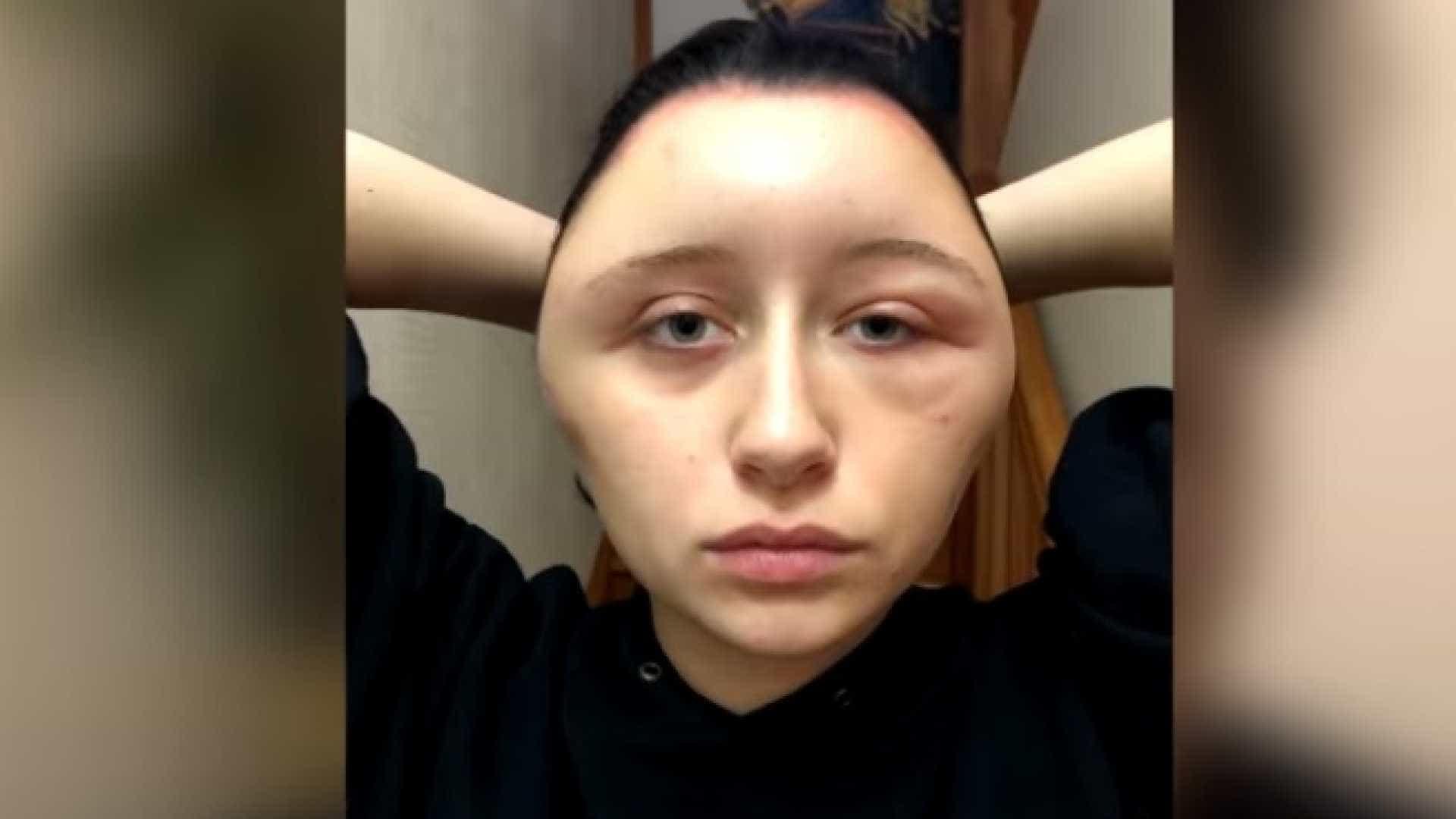 Jovem fica em estado grave após reação alérgica a tinta de cabelo