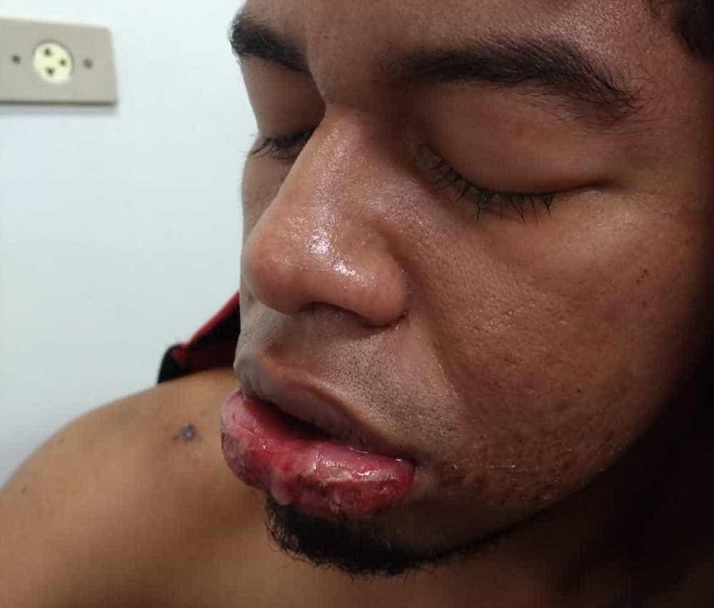 Jovem não aceita término e ataca ex com soda cáustica em Manaus