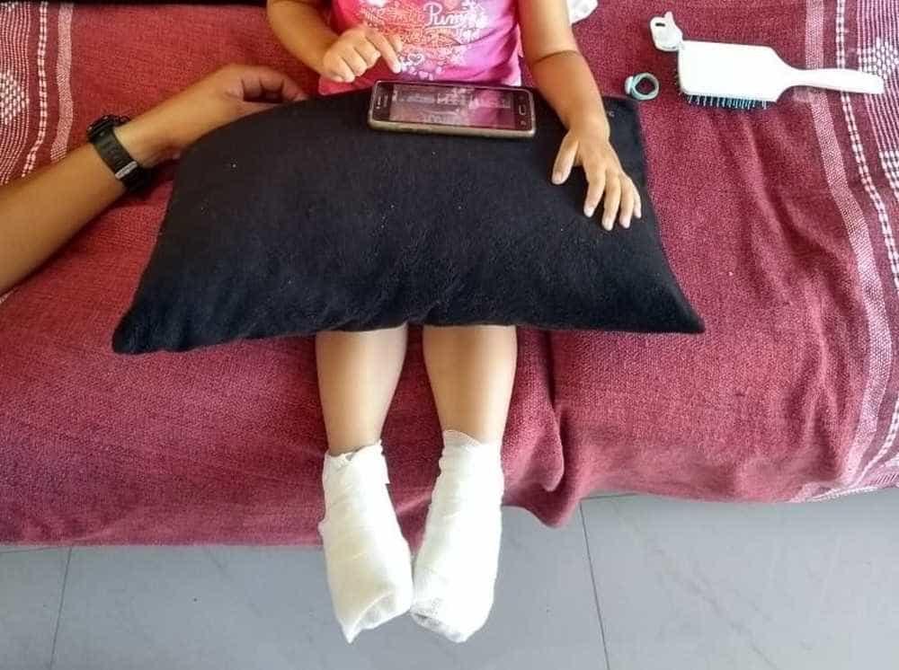 Criança sofre queimadura nos pés ao ficar descalça em creche