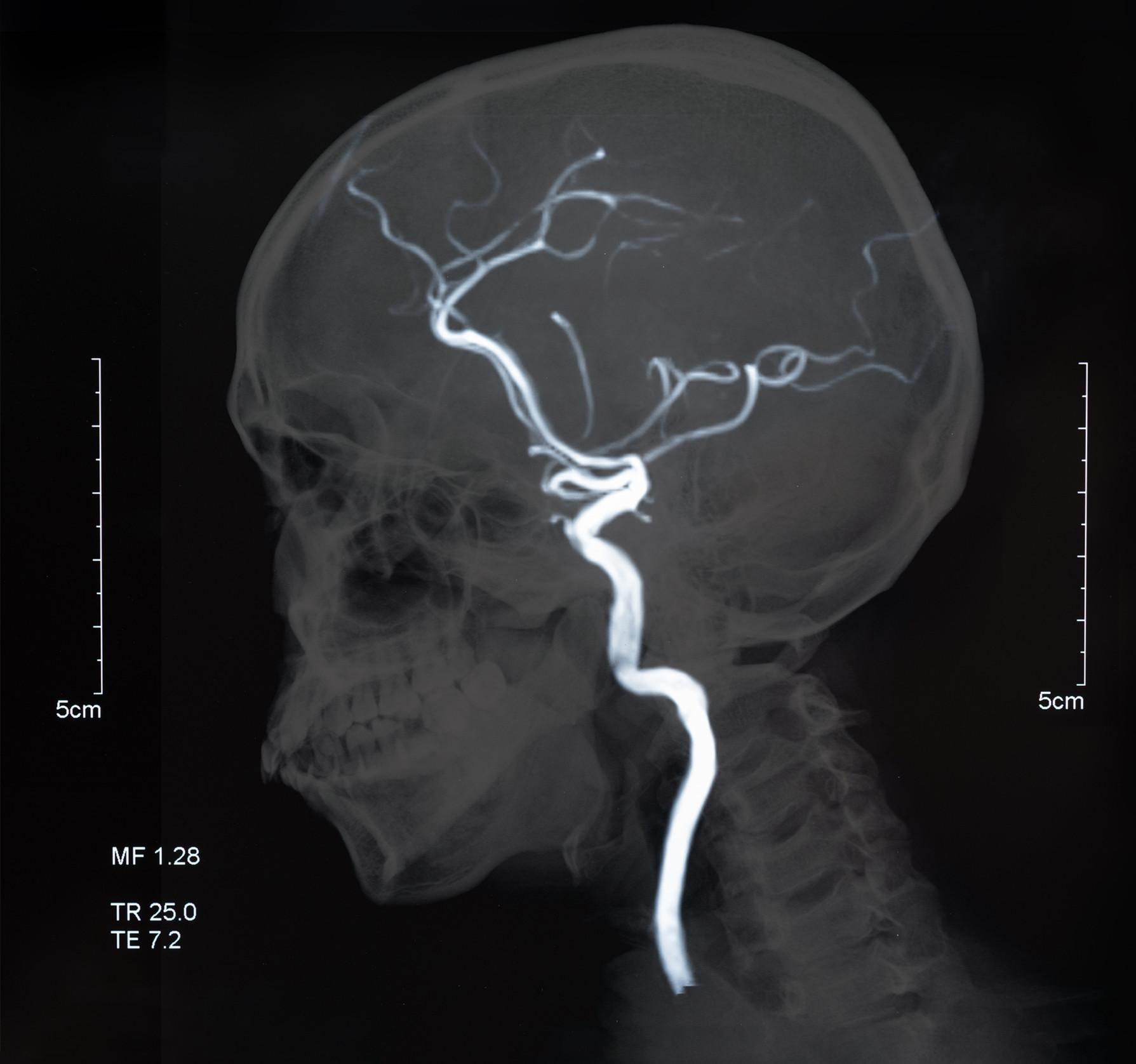 Saiba mais sobre o aneurisma cerebral e as consequências à saúde
